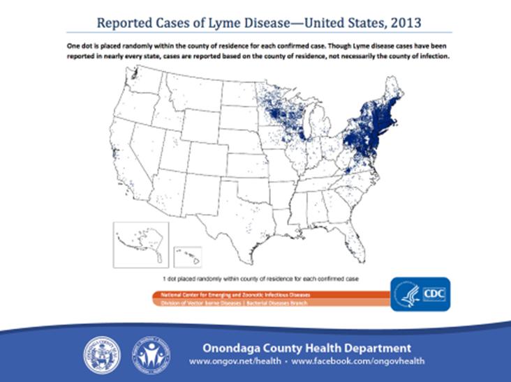 Lyme Disease 4