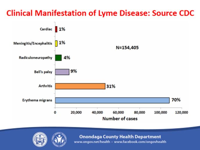 Lyme Disease 11